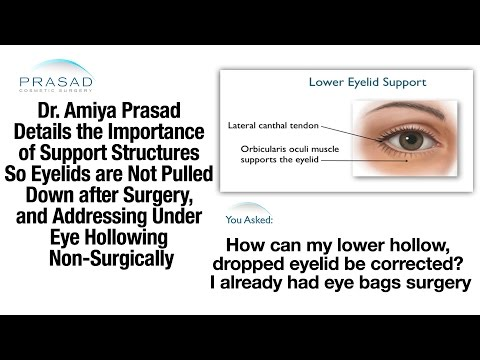 Causes of Droopy Lower Eyelids after Eye Bags Surgery, & Treating Hollows Under Eyes