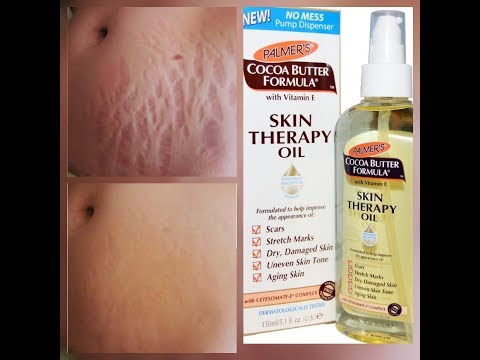 HOW TO GET RID OF STRETCH MARKS AND SCARS VERY FAST (SKIN THERAPY OIL)