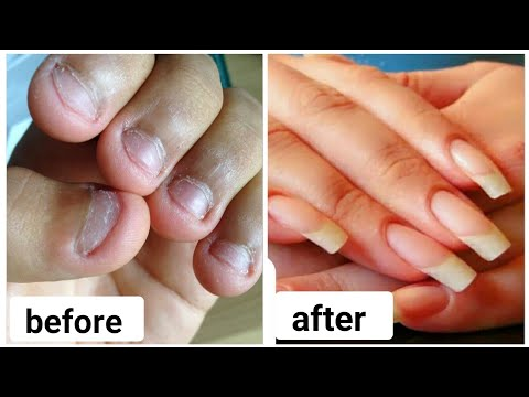 How to:Grow Nails Faster & Strong at home/ Grow bitten Nails