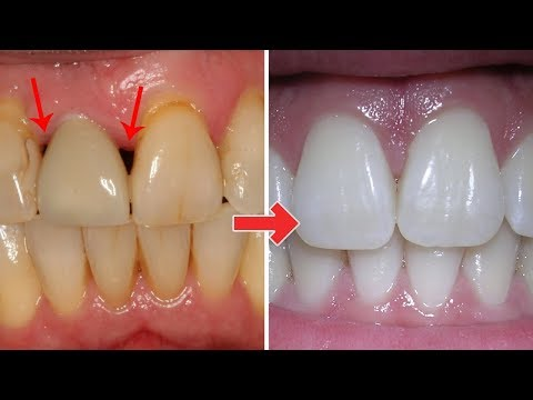 3 Ridiculously easy ways to Treat gum disease at home.