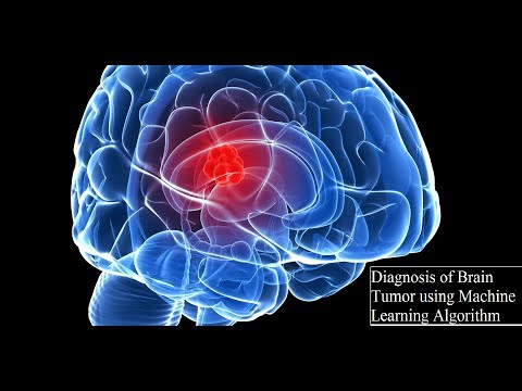 Diagnosis of Brain Tumor using ML Algorithm