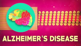 What is Alzheimer