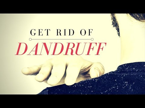 How to Remove Dandruff from Hair | Home Remedies for Dandruff