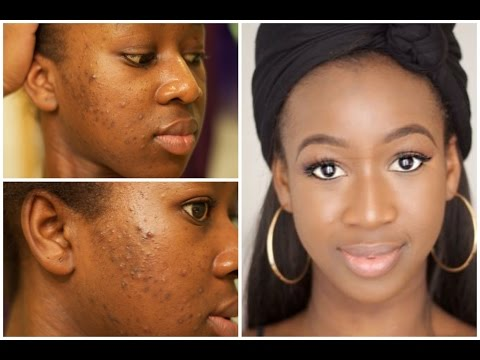 How I Cleared My Cystic Acne in 2 weeks