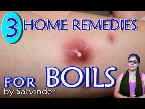 HOME REMEDIES FOR BOILS II फोडो का घरेलु उपचार II BY SATVINDER KAUR II