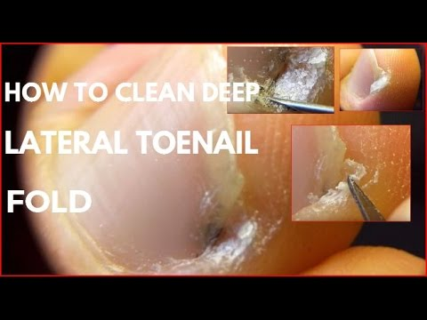 How to clean Deep lateral toenail fold
