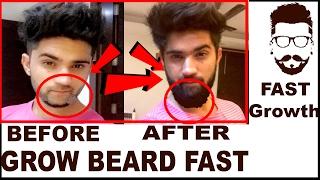 How To Grow Beard Fast 100 Beard Growth Tips In Hindi English India
