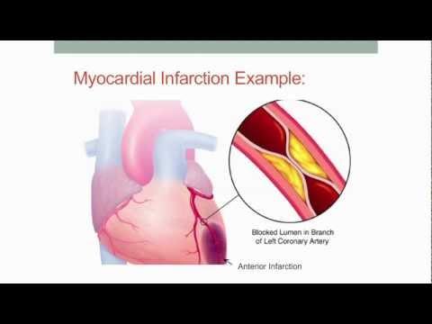EKG Anaysis 2012 (Part 2)