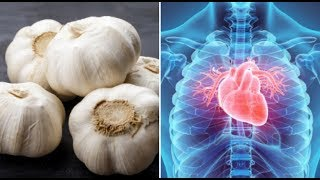 5 Miracle Cures of Garlic That Will Surprise You - Benefits Of Garlic For Your Health