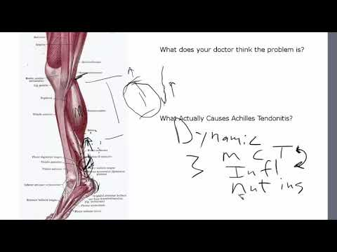 Achilles Tendonitis Is NOT A Tendon Problem