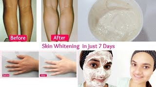 Skin Whitening treatment in just 7 days | get smooth glowing radiant skin in just 7 days