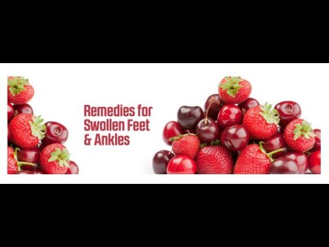 11 Useful Remedies for Reducing Swollen Feet and Ankles