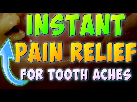 How to Stop TOOTH PAIN INSTANTLY (4 Different Ways) & Make Your OWN FILLING [] DIY Tooth Pain Relief