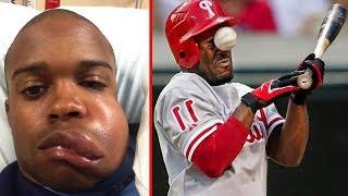 When Baseball Goes Wrong