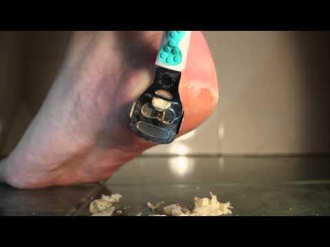 Cutting Dead Skin Off Feet