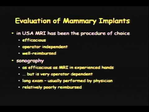 IBU Ultrasound of Breast Implants StavrosTRIMMED