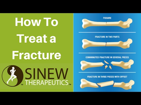 How To Treat a Fracture and Speed Recovery