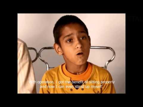 Cerebral Palsy Treatment.... Hindi
