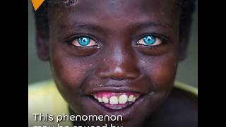 Africans With Eyes The Color Of The Sky