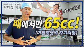 마른체형의 남성도 자가지방으로 수술받을수있을까?