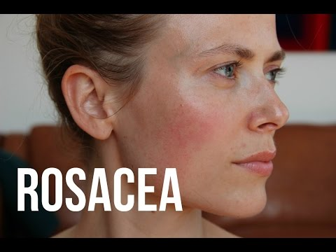What's Rosacea And Treatments | Makeup And Medicine