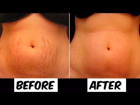 Do This For A Month To Remove Your Stretch Marks Completely