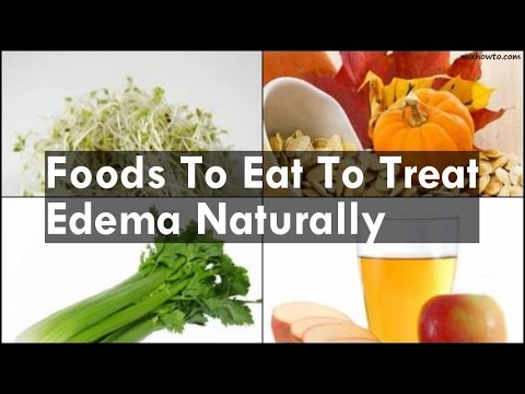 Foods To Eat To Treat Edema Naturally