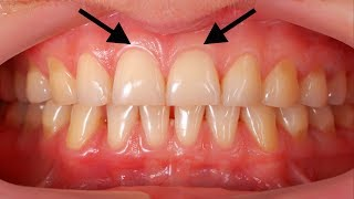 Grow Back Your Receding Gums In 2 Weeks By Only Using These Natural Homemade Remedy