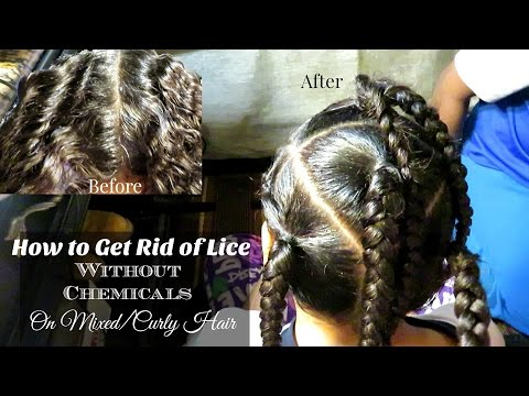 How to Get Rid of Lice Without Chemicals on Mixed/Curly Hair | Life With Vicki
