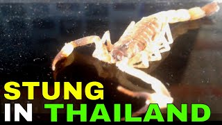 Download SCORPIONS STING   Scorpion bite in Thailand Video