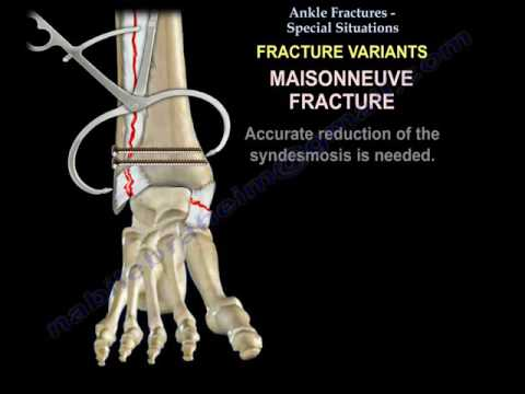 Ankle Fractures , Special Situations - Everything You Need To Know - Dr. Nabil Ebraheim