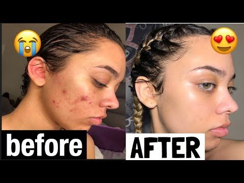THIS PRODUCT CLEARED MY SKIN IN 2 WEEKS