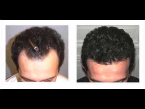 Hair Regain Naturally Superfoods To Regrow Hair