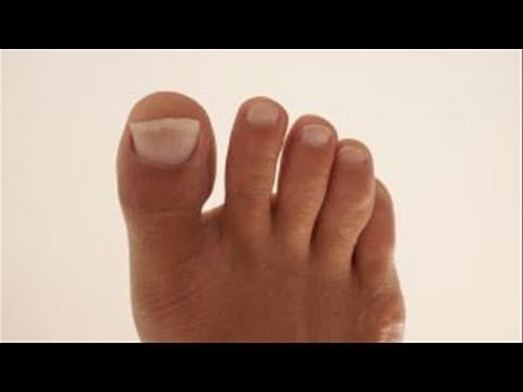 How To Remedy Yellow Toenails