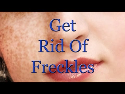 Get Rid Of Freckles Naturally (Subliminal)
