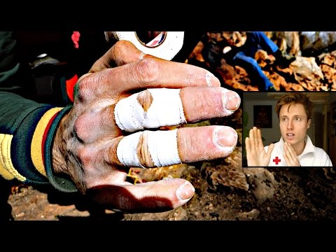 Climbing Related Finger Injuries : Treatment