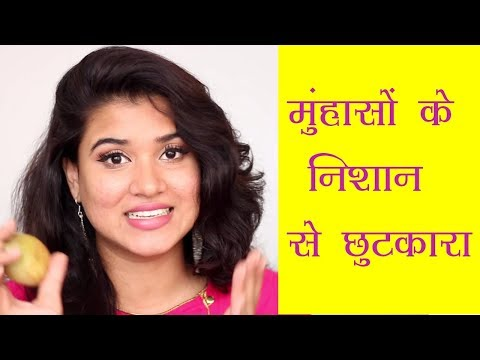 How to Get Rid of Acne Scars (Hindi)