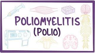 Poliomyelitis - causes, symptoms, diagnosis, treatment, pathology