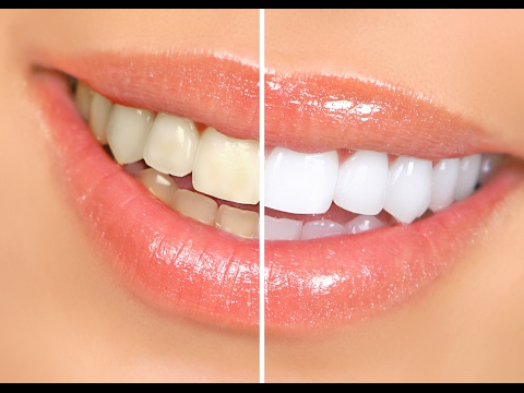 How To whiten Teeth With braces | How To Whiten Teeth at Home