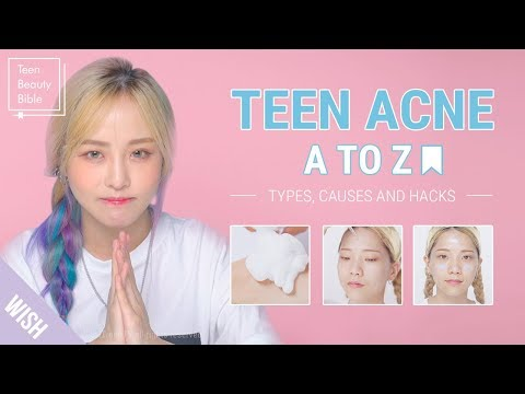 Teen Acne | Acne Meaning & Acne Treatment for Teenage Girls and Boys