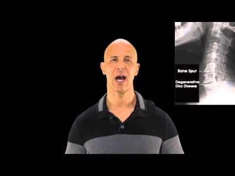 Bone Spurs, Osteophytes, Arthritis in Neck / Dr Mandell