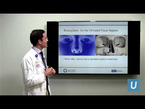 Rhinoplasty: A Safe, Systematic Approach to Nasal Surgery | UCLA Plastic Surgery