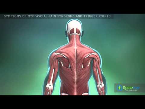 Myofascial pain syndrome and trigger points. Symptoms