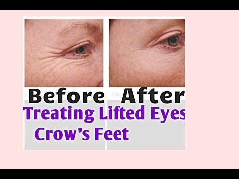 LIFTED EYES-CROW'S FEET WRINKLE TREATMENT