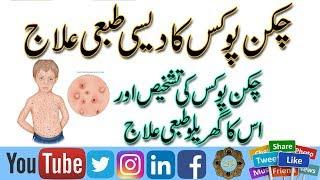 Bukhar k ilaj ka Wazifa | Typhoid Or Dengue bukhar jar se khatam