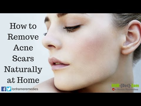 How to Remove Acne Scars Naturally at Home
