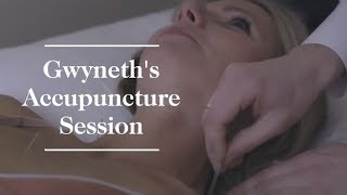 Download Gwyneth Paltrow's Acupuncture Session | goop Video