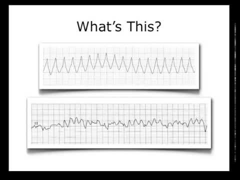 ECG Heart Rhythm Review