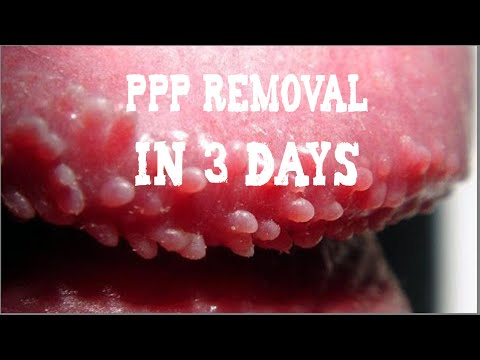PPP (White Bumps on Penis) Removal   Natural Skin Treatment