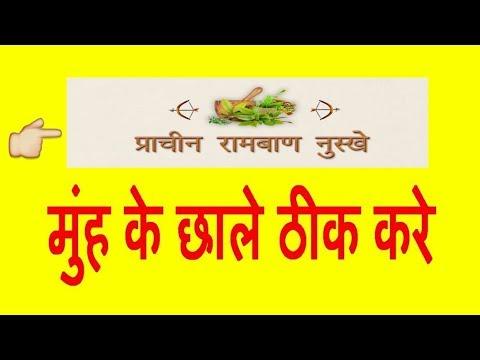 मुंह के छाले के लिए रामबाण संजीवनी - Home Remedies for Mouth Ulcer in Hindi
